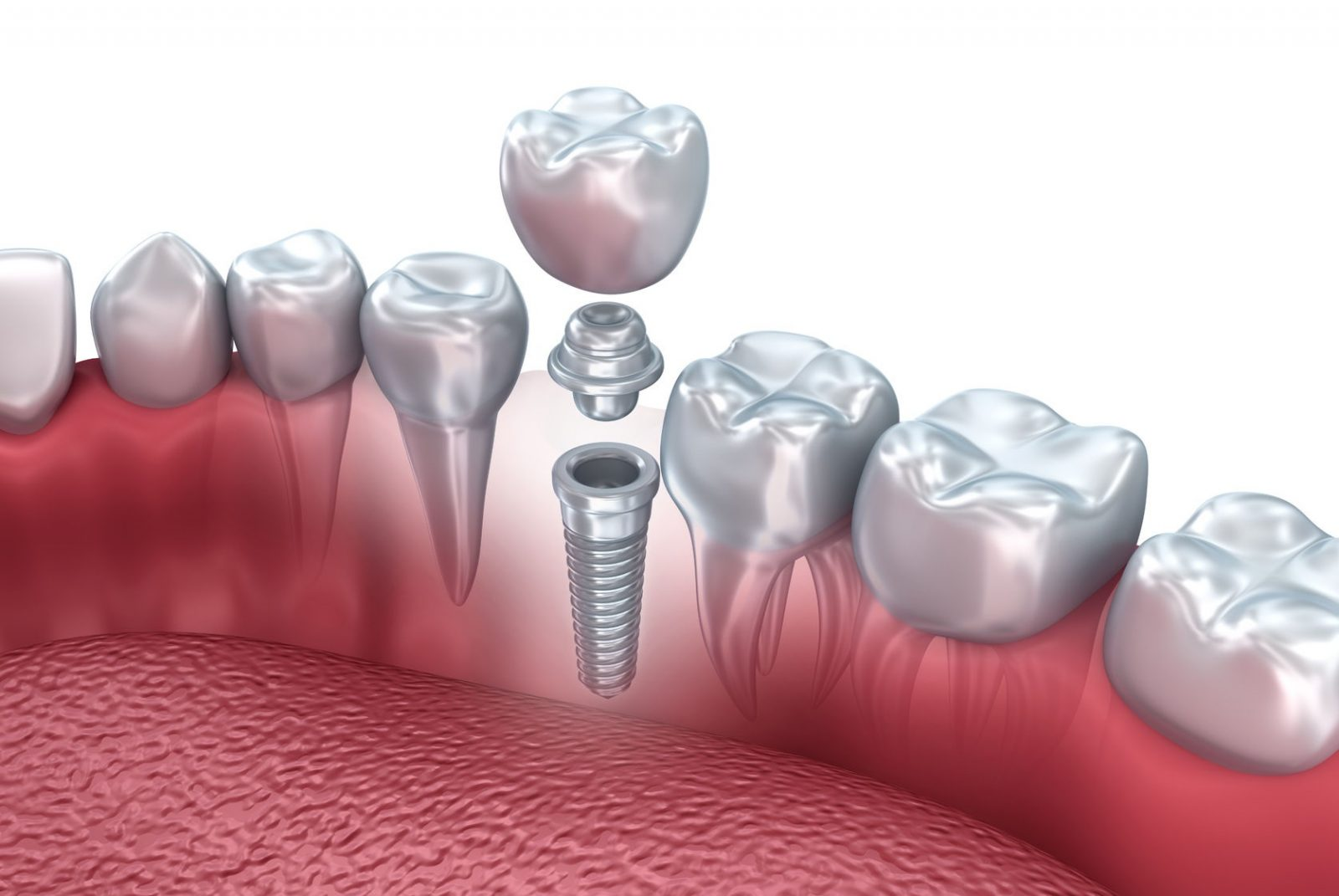 50149518 - tooth human implant, 3d illustration