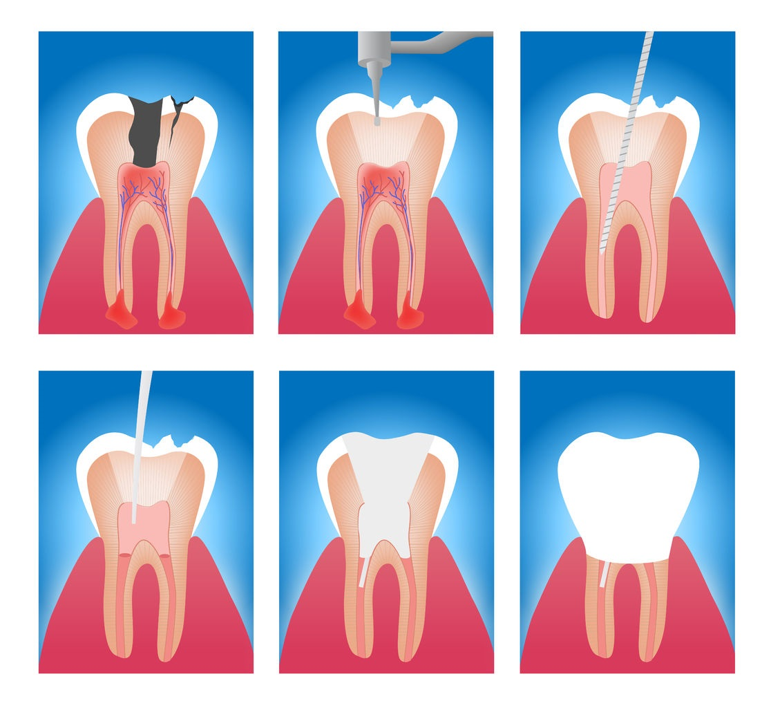 72016665 - infographic stages of root canal treatment vector